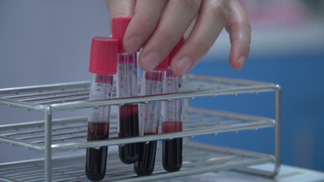 Blood samples in tubes Thailand,Healthcare And Medicine, AIDS, Cancer - Illness, DNA blood clot stock videos & royalty-free footage