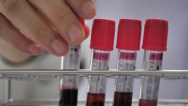 Blood test laboratory equipment