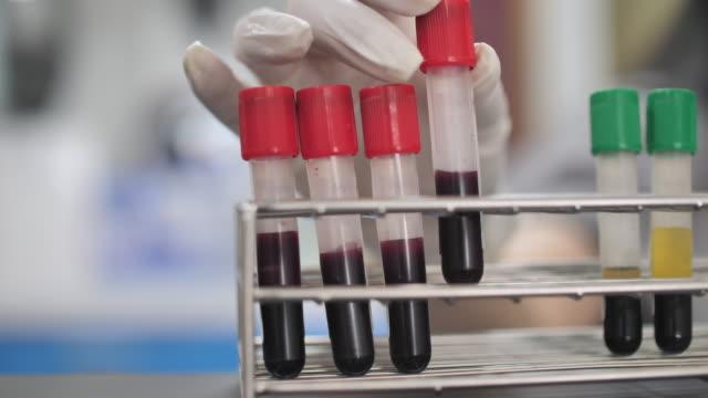 vidéos et rushes de équipement de laboratoire d'essai sanguin - caillot sanguin