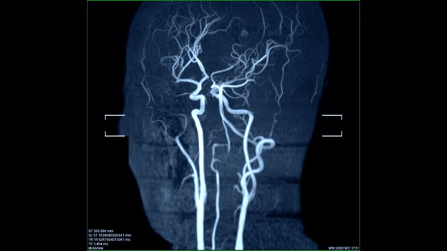 blood vessels scan image MRI of the blood vessels in the brain and cerebrovascular disease. brain stroke x-ray image. diagnostic medical tool stock videos & royalty-free footage