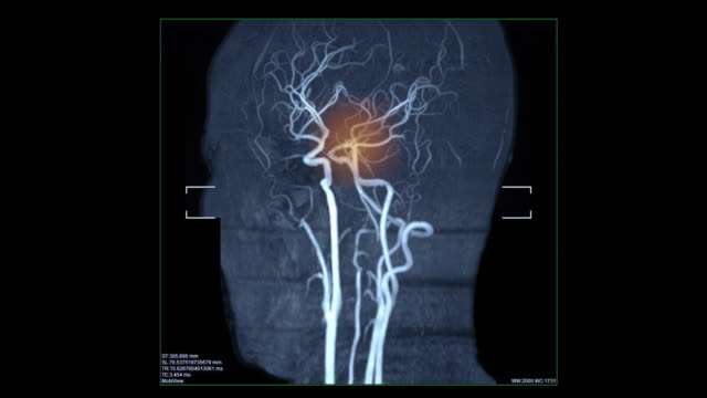 vídeos de stock e filmes b-roll de blood vessels scan with stroke - enfarte