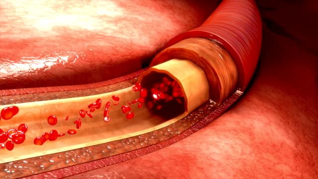 vidéos et rushes de les vaisseaux sanguins - nervure