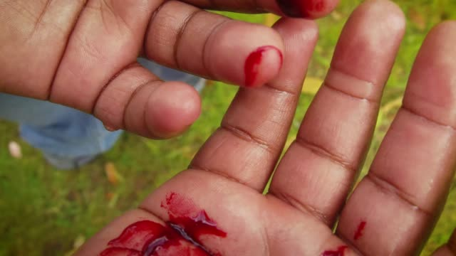 Bloodied Hands video