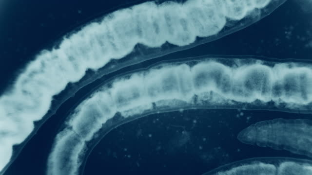 bloodworm unter mikroskop (glycera, ringelwürmer) - wurm stock-videos und b-roll-filmmaterial