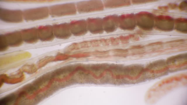 Bloodworm under Microscope (Glycera, Annelid)