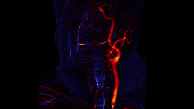 Blue and orange cerebral angiography scan Blue and orange cerebral angiography scan. Brain vessels angiography. arteriogram stock videos & royalty-free footage