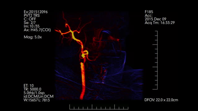vídeos de stock e filmes b-roll de blue and orange colored brain vessels angiogram.  cerebral angiography. - enfarte
