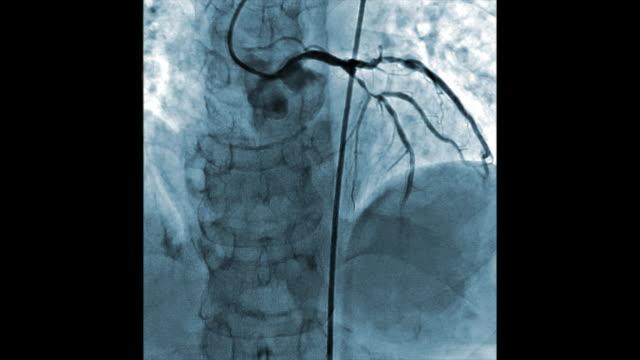 vídeos y material grabado en eventos de stock de azul color prueba de angiografía de los vasos del corazón - arteriograma