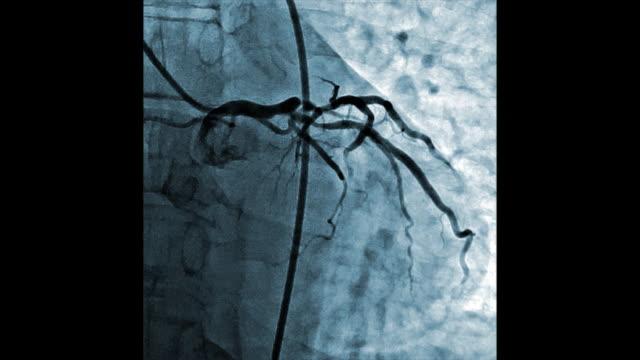 vídeos de stock e filmes b-roll de blue colored heart vessels angiography testing - arteriograma