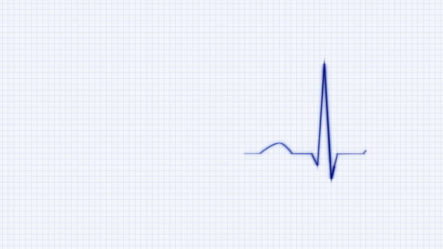Blue HeartBeat Cardiogram on Grid Background. video