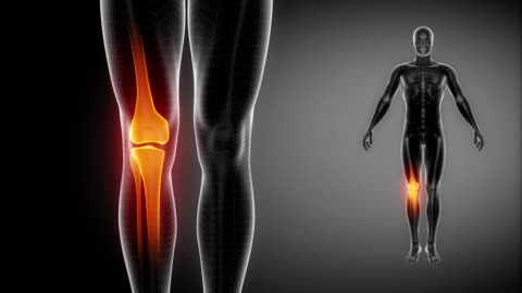 knieknochen skelett x-ray scannen in schwarz - gliedmaßen körperteile stock-videos und b-roll-filmmaterial