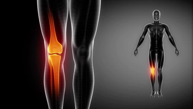 vídeos de stock, filmes e b-roll de joelho osso raio-x esqueleto digitalização em preto - articulação humana