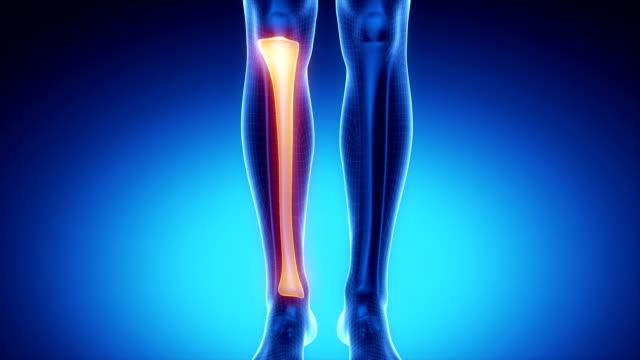 tibia knochen-skelett in blau x-ray scan - gliedmaßen körperteile stock-videos und b-roll-filmmaterial