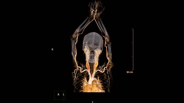 vidéos et rushes de cta artère brachiale ou balayage de ct de l'image de rendu 3d d'extrémité supérieure pour diagnostiquer la sténose brachiale d'artère. - artériographie
