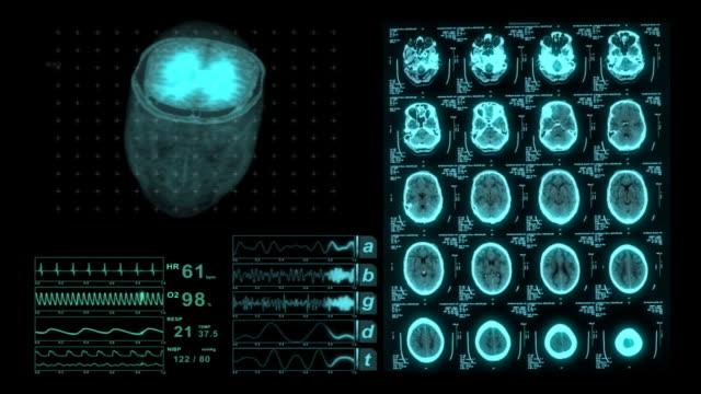 Brain CAT Scan Medical XRay Monitor Display video