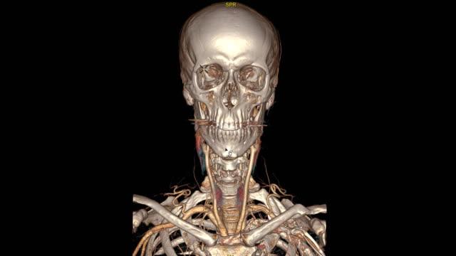 vídeos y material grabado en eventos de stock de cta comparación cerebral axial, coronal y sagital ver imagen de renderizado 2d y 3d en la pantalla. - arteriograma