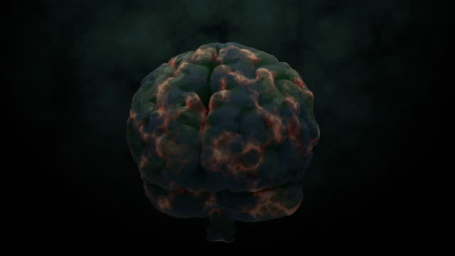 Brain infection 3d render animation Brain infection 3d render animation wisdom stock videos & royalty-free footage