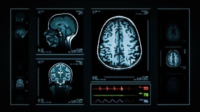 脳 mri スキャンします。ブルーます。医療バックグラウンド。head x 線ます。ekg ます。ループます。 - mri検査点の映像素材/bロール