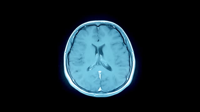 Brain MRI scan-a diagnostic method  blood clot stock videos & royalty-free footage