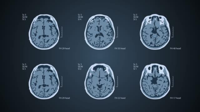 Brain MRT scan. 6 views on one screen. 4k medical blue background Brain MRT. 6 scans. Each video is loopable. Medical blue background cerebellum stock videos & royalty-free footage