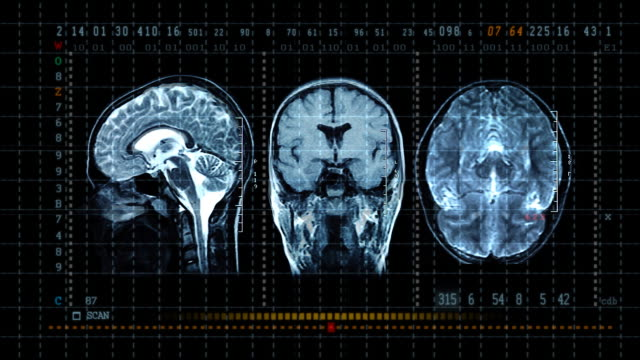 stockvideo's en b-roll-footage met brain mrt scan display - gefabriceerd object