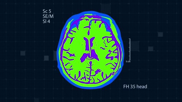 Brain MRT scan. Full HD medical background. Seamless looping Brain MRT scan. Medical background. Full HD medical GUI cerebellum stock videos & royalty-free footage