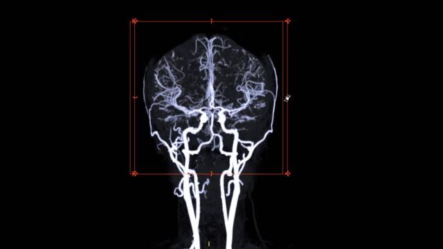 vídeos y material grabado en eventos de stock de cta cerebro o angiografía por tomografía computarizada del cerebro 3d mip renderización imagen de color blanco y negro que muestra el vaso del cerebro girando en la pantalla. - arteriograma