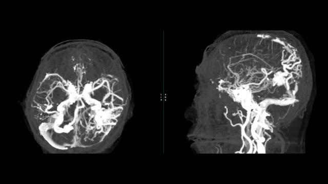 vídeos y material grabado en eventos de stock de cta angiografía cerebral o tomografía computarizada de la imagen de mip 3d cerebral que muestra malformación arteriovenosa cerebral o malformación arteriovenosa dando la vuelta en la pantalla. - arteriograma