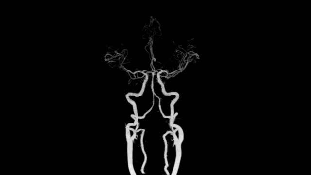 vídeos de stock e filmes b-roll de cta brain or computed tomography angiography of the brain 3d mip. - arteriograma