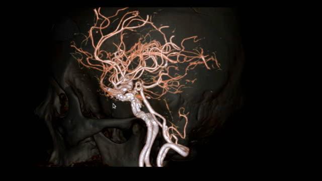 vidéos et rushes de cta cerveau ou angiographie de tomographie calculée de l'image de rendu 3d de cerveau montrant l'artère cérébrale du cerveau avec l'os transparent tournant sur l'écran. - artériographie