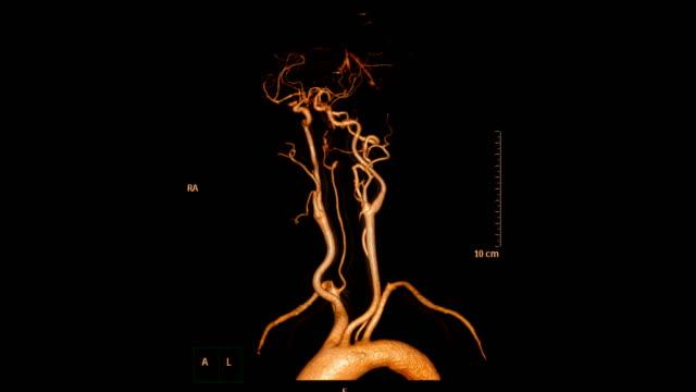 vídeos y material grabado en eventos de stock de cta cerebro o angiografía por tomografía computarizada del cerebro una imagen de representación 3d que muestra la arteria carótida común del cerebro girando en la pantalla. - arteriograma