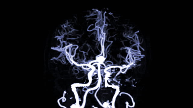 CTA Brain or computed tomography angiography of the brain a 3D Rendering image showing Anterior communicating artery or ACOM aneurysms. CTA Brain or computed tomography angiography of the brain a 3D Rendering image showing Anterior communicating artery or ACOM aneurysms. blood vessel stock videos & royalty-free footage