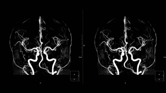 vídeos de stock e filmes b-roll de mra brain or magnetic resonance angiography compare right to left and foot to head turn around on the screen for evaluate cerebral artery disease. - arteriograma