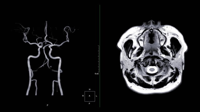 vídeos de stock e filmes b-roll de mra brain or magnetic resonance angiography of cerebral artery in the brain compare axial t2w turn around on the screen. mra brain mip view for evaluate cerebral artery. - tumor cerebral