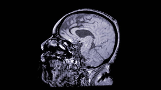 vídeos de stock e filmes b-roll de mra brain or magnetic resonance angiography of the brain sagittal view slow motion for evaluate brain and cerebral artery. - arteriograma