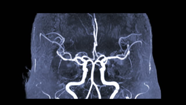vídeos de stock e filmes b-roll de mra brain or magnetic resonance angiography (mra) of vessel in the brain turn around on the screen. mra brain mip view for evaluate cerebral artery. - arteriograma