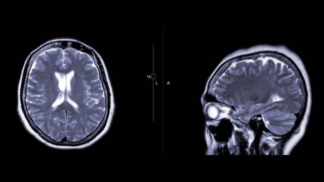 vídeos de stock e filmes b-roll de mri brain or magnetic resonance imaging ( mri ) of the brain compare axial and sagittal  plane with gadolinium contrast media. - enfarte