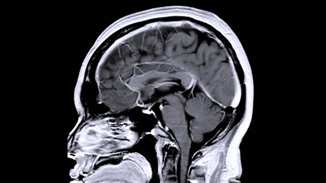 mri brain sagittal plane after injection gadolinium contrast media for detect brain tumor and brain disease. - медицинский рентген стоковые видео и кадры b-roll