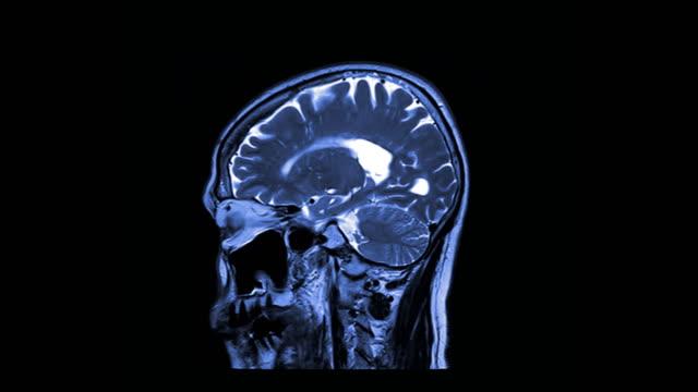 MRI MRA brain sagittal plane for detect Brain disease. MRI MRA brain sagittal plane for detect Brain disease. blood flow stock videos & royalty-free footage