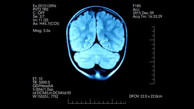 MRI brain scan futuristic blue color display video