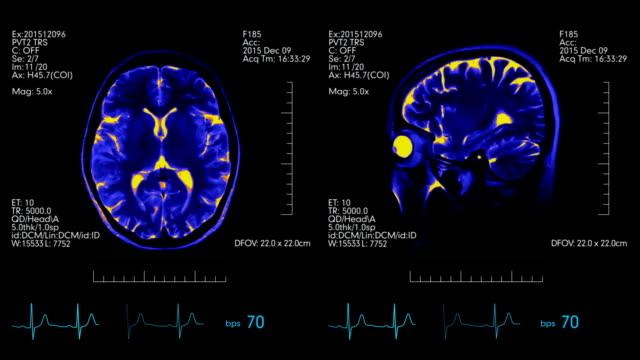 MRI brain scan futuristic display blue and orange with heartbeat rate monitor video