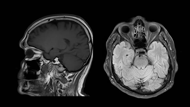 vídeos de stock e filmes b-roll de ct brain scan image on magnetic resonance imaging (mri) - tumor cerebral