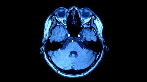Brain scan image Scanned brain scan image by mri scanner on sceen computer. head stock videos & royalty-free footage