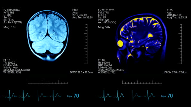MRI brain scan medical display teal blue and orange with heartbeat rate video