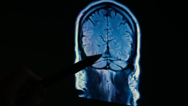 vídeos de stock e filmes b-roll de cérebro de um exame de rmn 4 k - instrumento para diagnóstico
