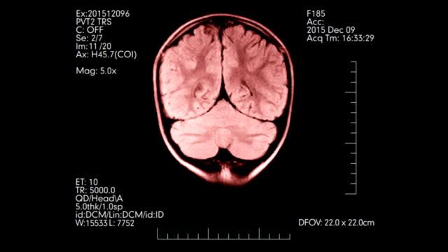 MRI brain scan pink color medical display animation video