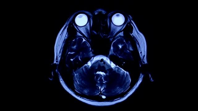 MRI brain scan video