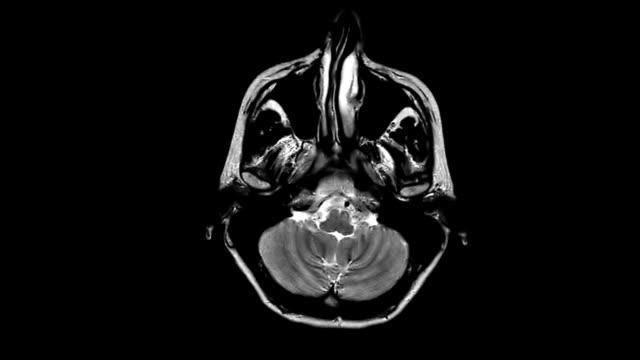 MRI brain scan,four angles video