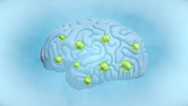 Brain Tumour - 4K Resolution