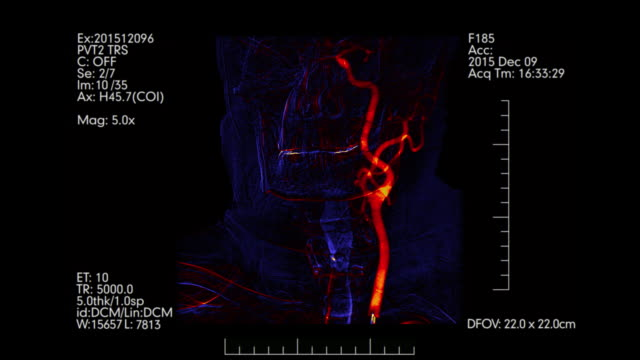 Brain vessels angiography | Blue and orange colored Cerebral angiogram. Brain vessels angiography | Cerebral angiogram. Orange and blue monitoring of head blood vessels. X-ray scan while radiography examination. arteriogram stock videos & royalty-free footage